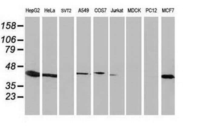 ARFGAP1 Mouse anti-Human, Non-human primate, Clone: OTI1H6, Invitrogen