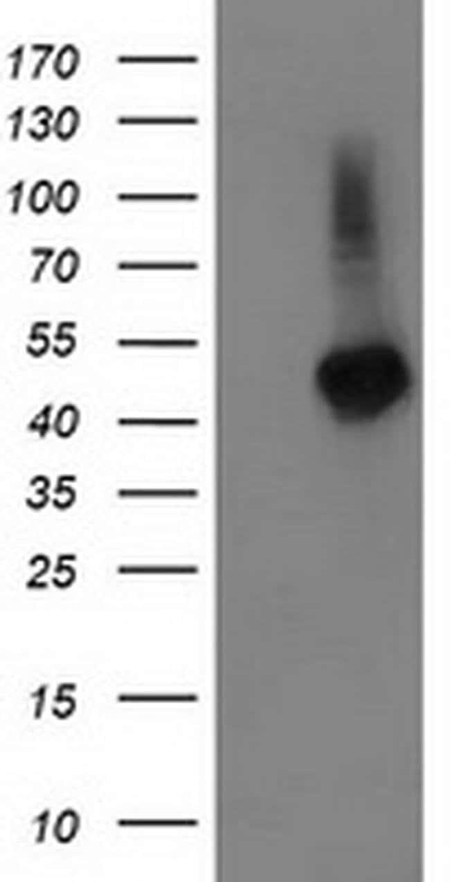 TBCEL Mouse anti-Human, Clone: OTI3H3, Invitrogen 100 µL; Unconjugated