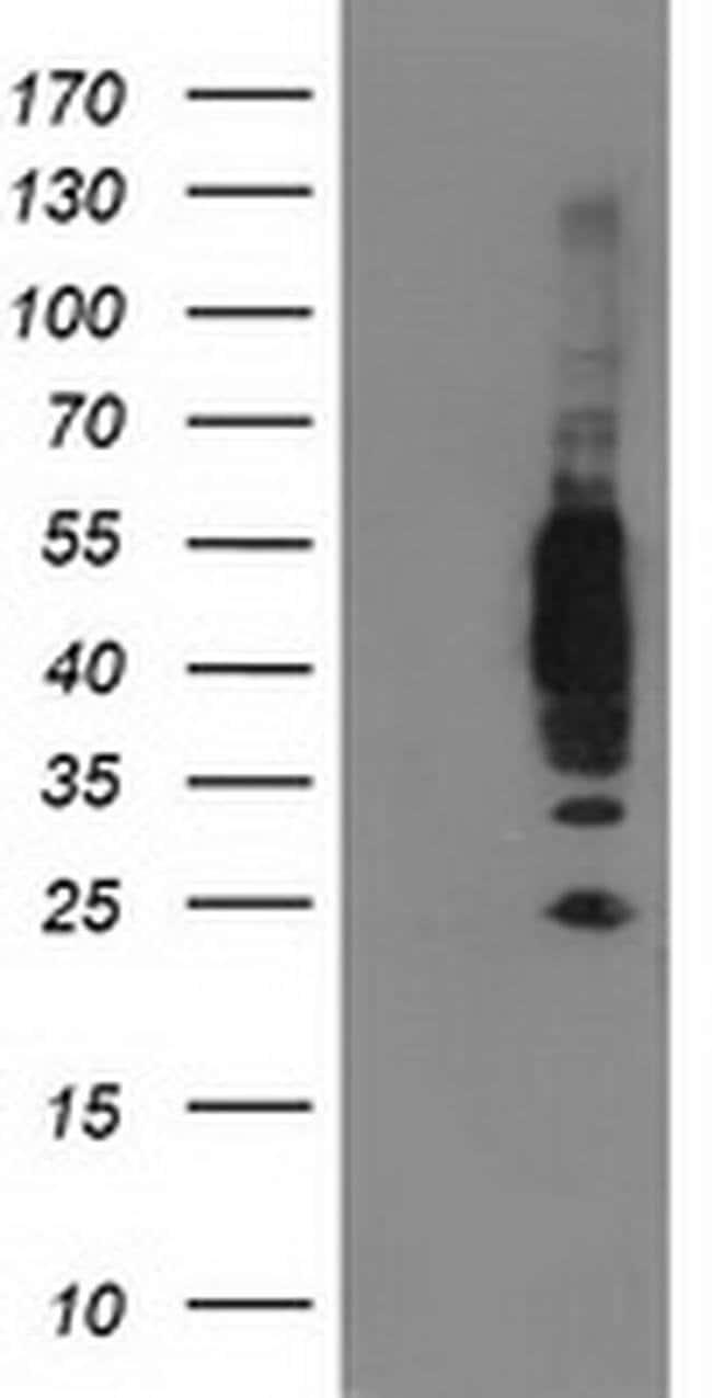 VASP Mouse anti-Human, Rat, Clone: OTI4D6, Invitrogen 100 µL; Unconjugated