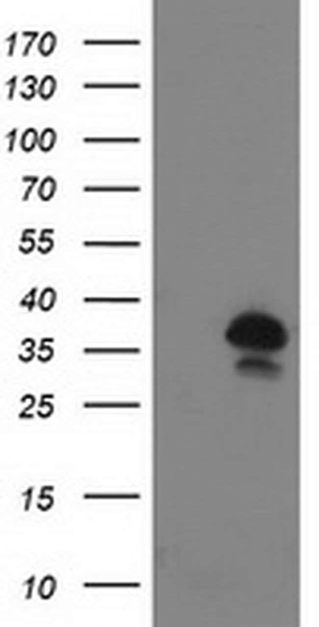UBXN2B Mouse anti-Human, Clone: OTI1G3, Invitrogen 100 µL; Unconjugated