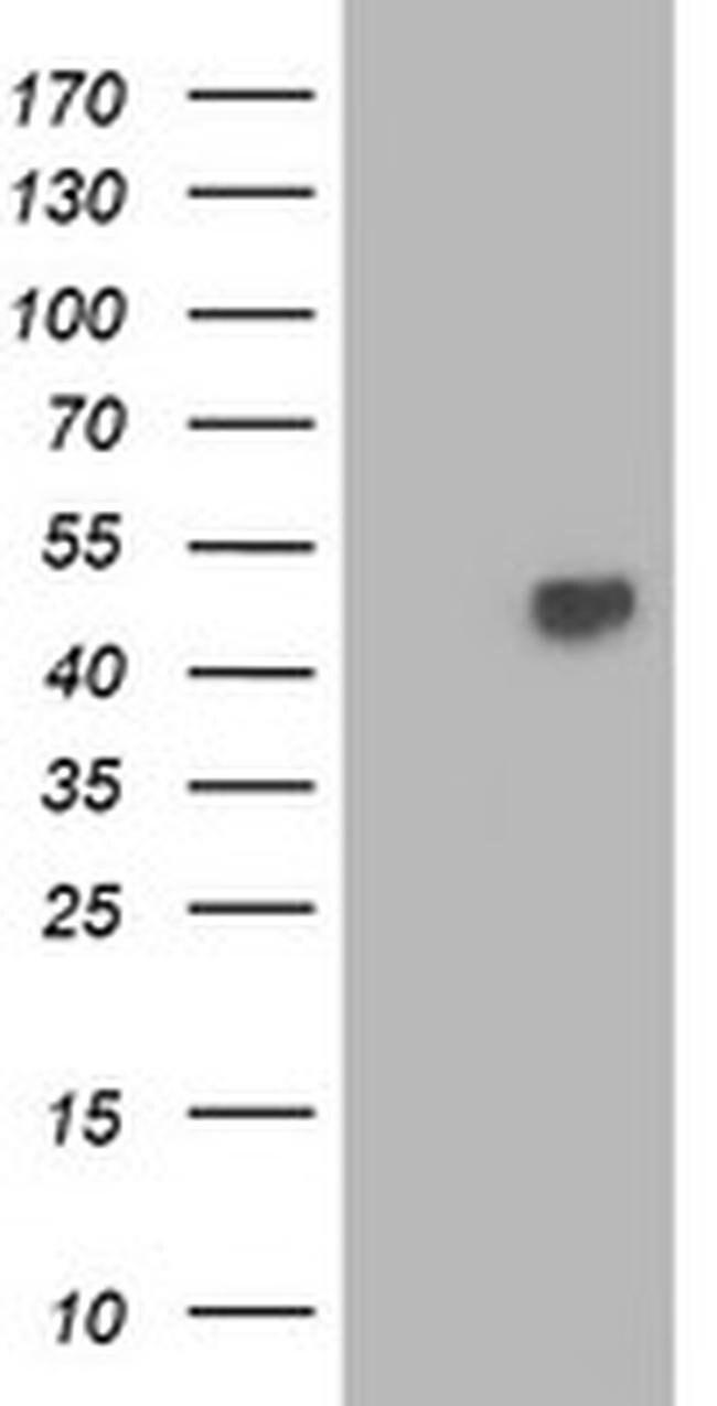 TBCEL Mouse anti-Human, Clone: OTI2A9, Invitrogen 100 µL; Unconjugated