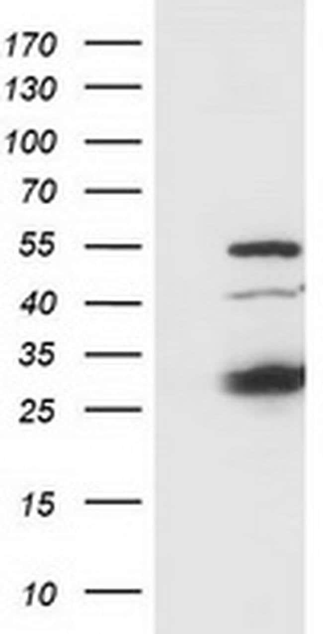 SSX1 Mouse anti-Human, Clone: OTI1E10, Invitrogen 100 µL; Unconjugated