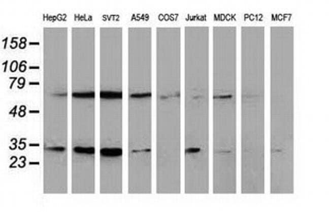 SSX1 Mouse anti-Canine, Human, Clone: OTI2E9, Invitrogen 100 µL; Unconjugated