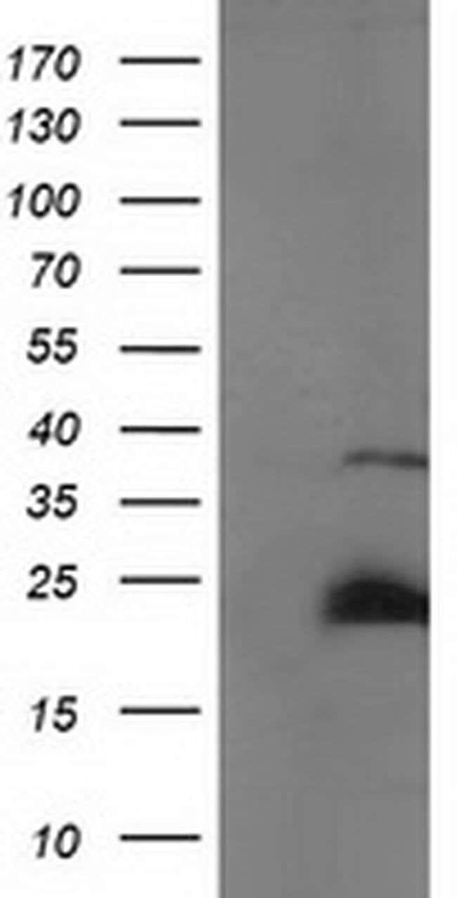 SSX1 Mouse anti-Human, Clone: OTI2F8, Invitrogen 100 µL; Unconjugated