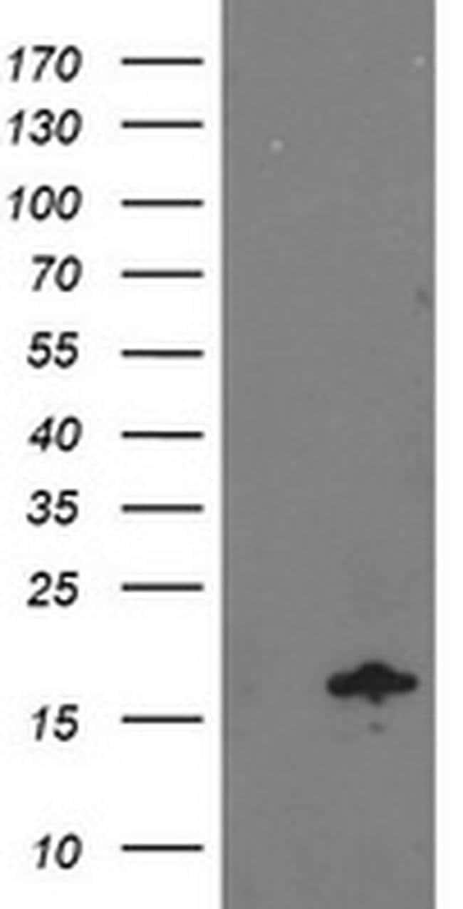NDUFA7 Mouse anti-Human, Clone: OTI2C3, Invitrogen 100 µL; Unconjugated
