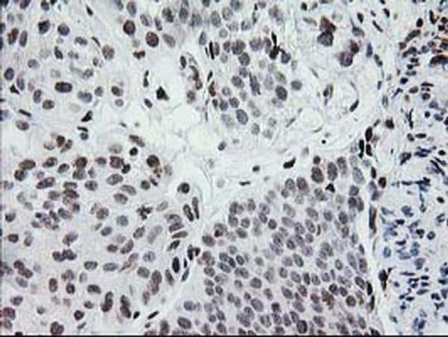 CRY2 Mouse anti-Human, Clone: OTI1H5, Invitrogen 100 µL; Unconjugated
