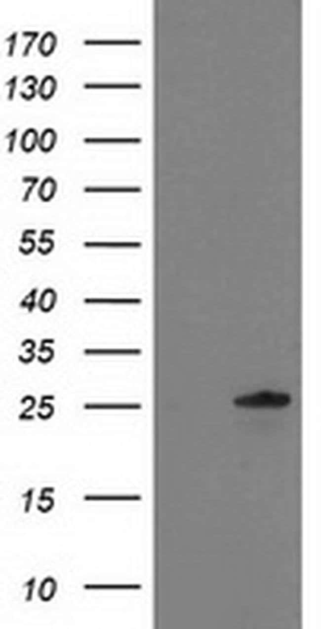 C1orf50 Mouse anti-Human, Clone: OTI1B11, Invitrogen 100 µL; Unconjugated