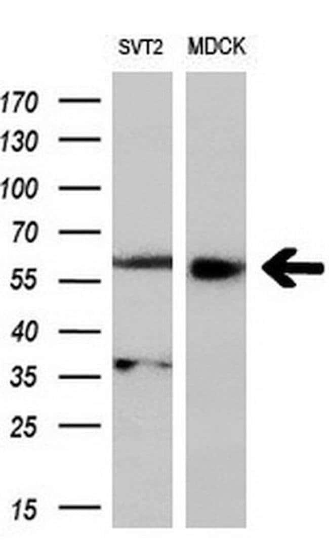 LNK Mouse anti-Human, Clone: OTI2C9, Invitrogen 100 µL; Unconjugated