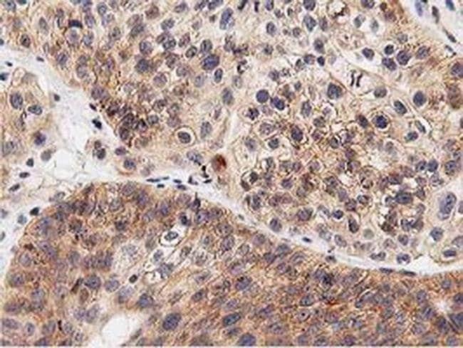 LGR5 Mouse anti-Human, Clone: OTI2H7, Invitrogen 100 µL; Unconjugated