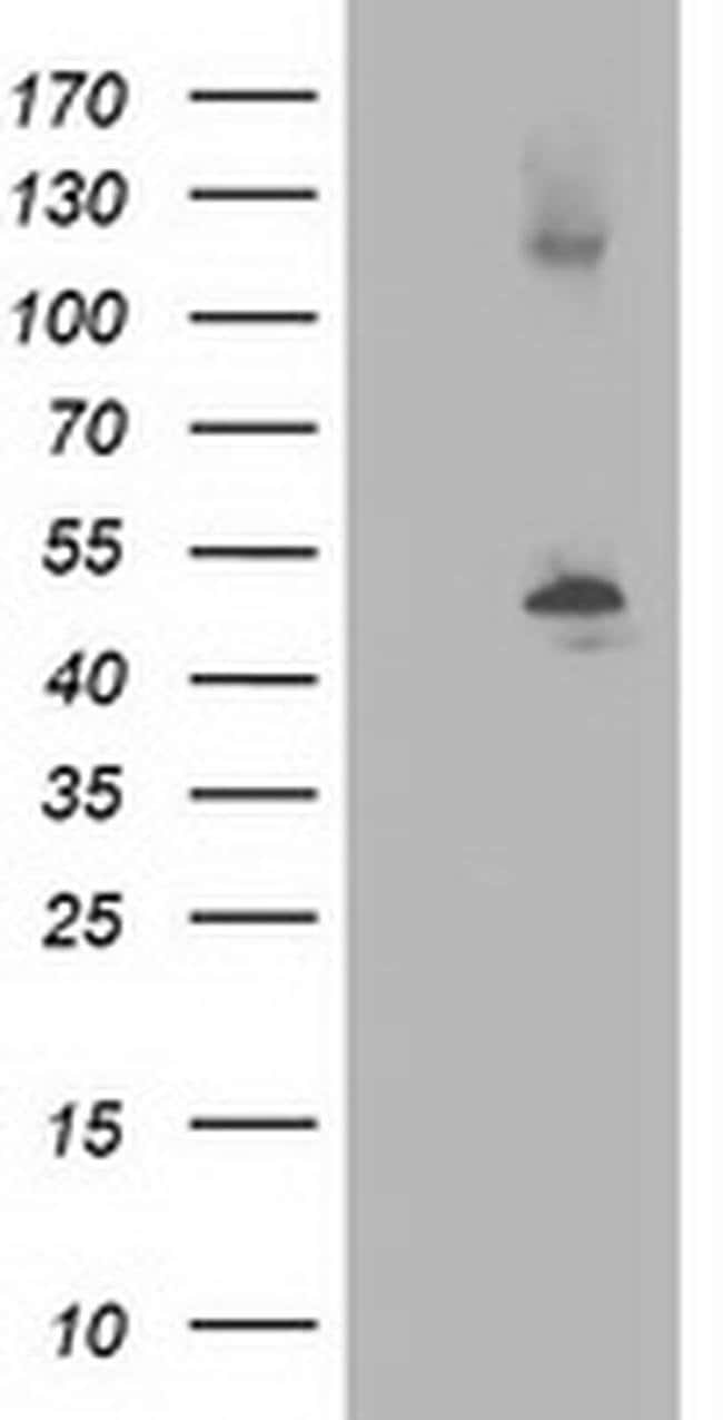 beta-4 Tubulin Mouse anti-Human, Mouse, Rat, Clone: OTI3C12, Invitrogen