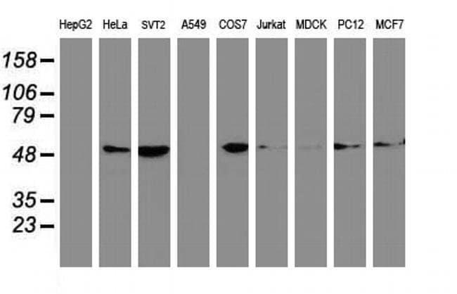 beta-4 Tubulin Mouse anti-Canine, Human, Mouse, Non-human primate, Rat,