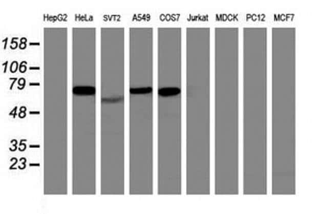 ITFG2 Mouse anti-Human, Clone: OTI 3B3, Invitrogen 100 µL; Unconjugated