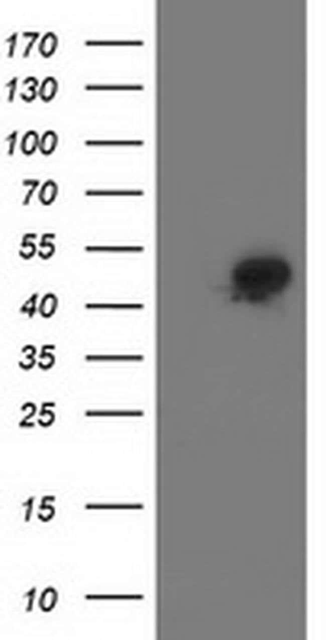 SMS Mouse anti-Human, Clone: OTI 1A7, Invitrogen 100 µL; Unconjugated