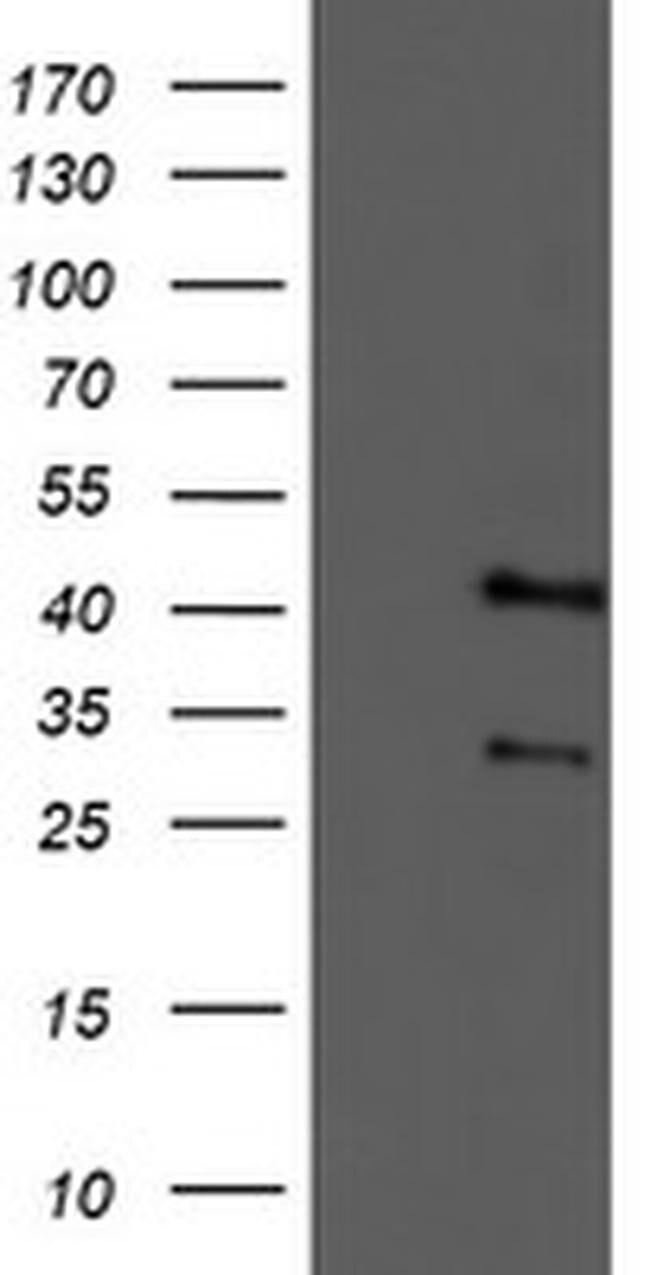 TMOD1 Mouse anti-Human, Mouse, Non-human primate, Rat, Clone: OTI2C2, Invitrogen