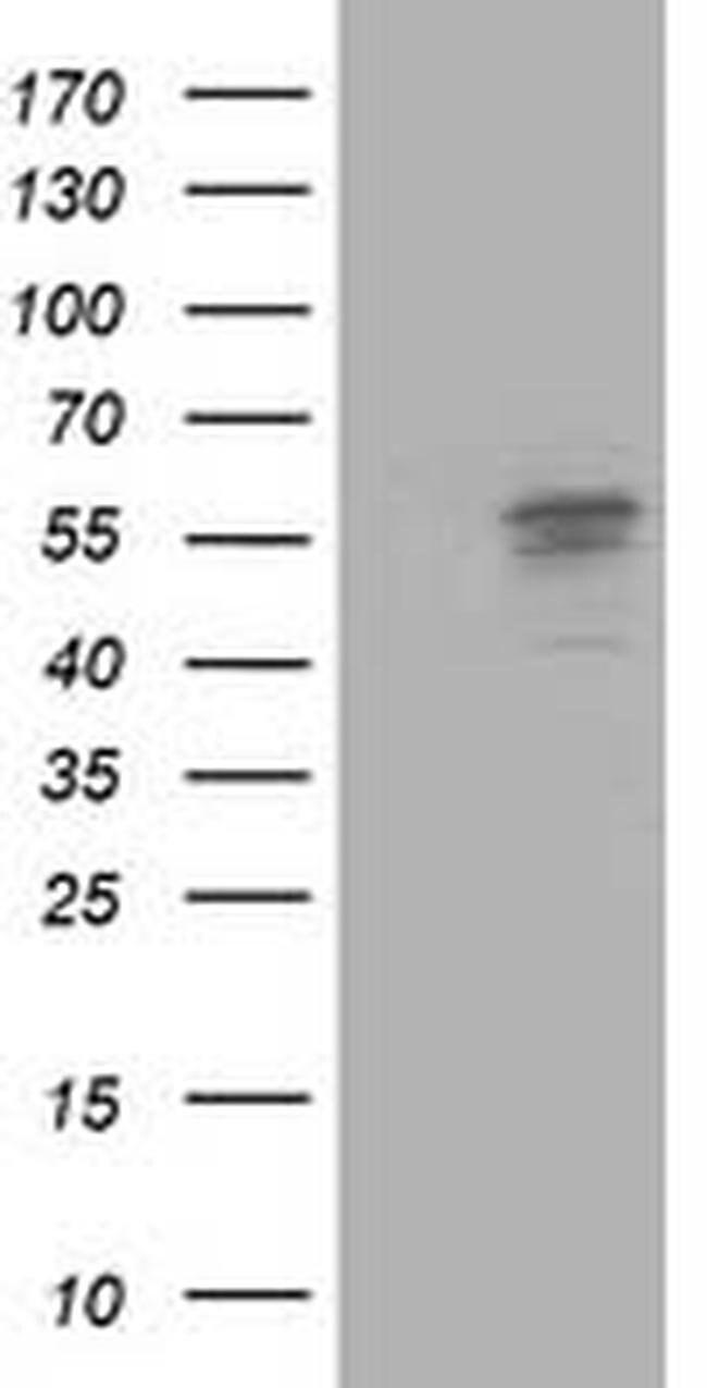 ALDH3A2 Mouse anti-Human, Clone: OTI2A7, Invitrogen 100 µL; Unconjugated