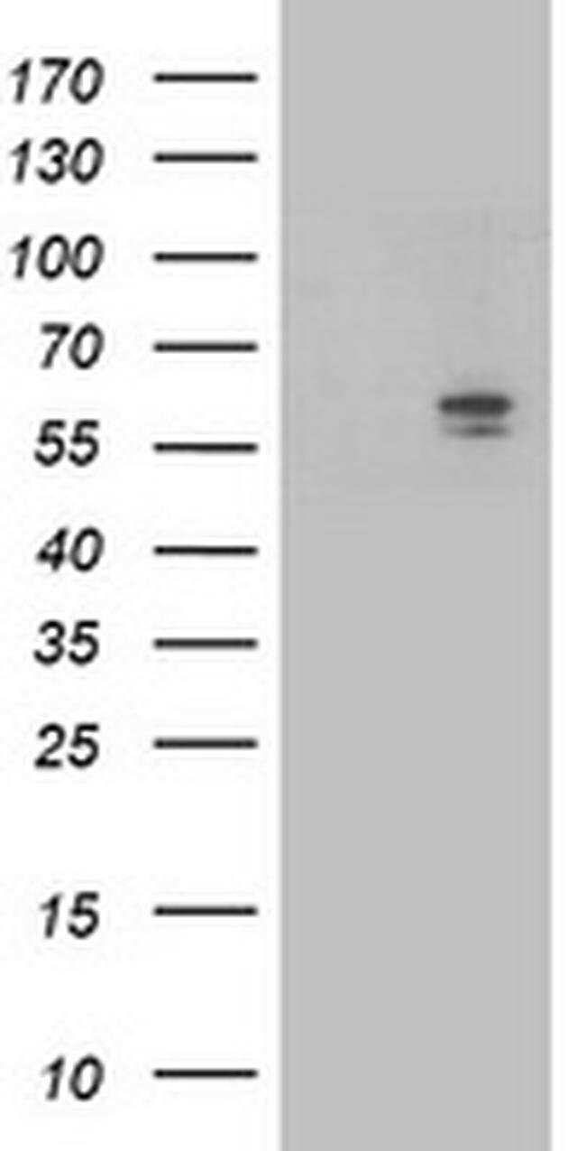 ALDH3A2 Mouse anti-Canine, Human, Non-human primate, Rat, Clone: OTI2D3,