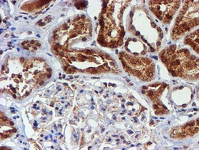 CYP17A1 Mouse anti-Human, Clone: OTI3F11, Invitrogen 100 µL; Unconjugated
