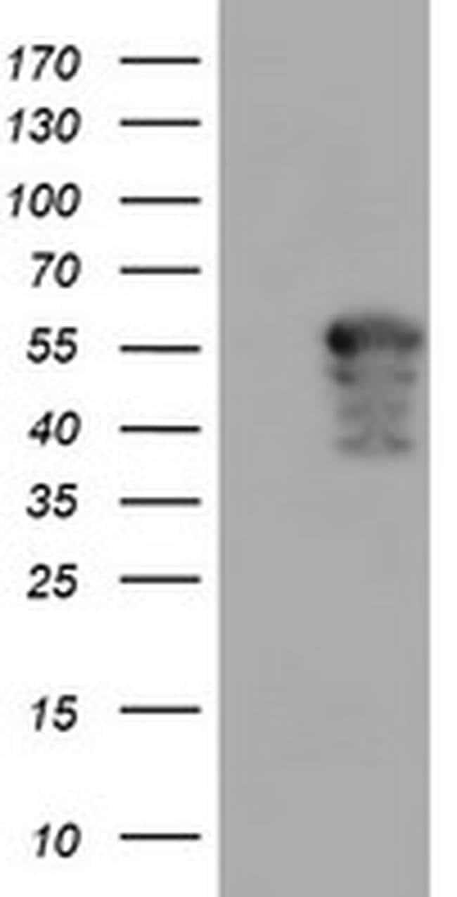 AIPL1 Mouse anti-Canine, Human, Non-human primate, Rat, Clone: OTI2B11,