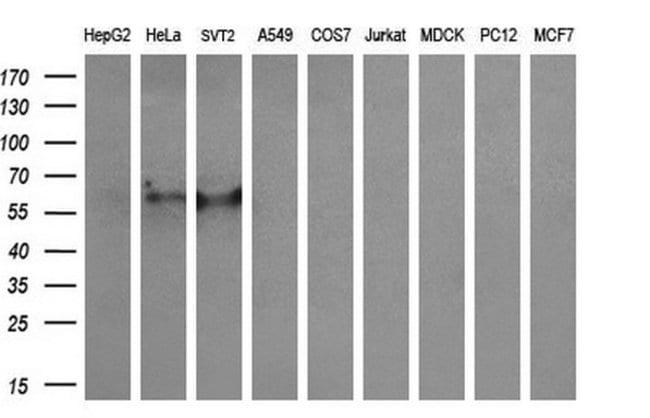 CYP2A6 Mouse anti-Human, Clone: OTI2A8, Invitrogen 100 µL; Unconjugated