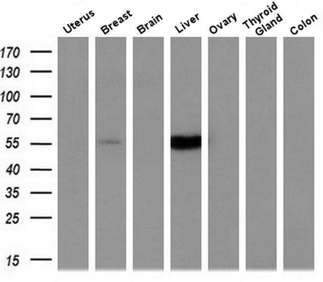 CYP2A6 Mouse anti-Human, Mouse, Non-human primate, Rat, Clone: OTI1D2,