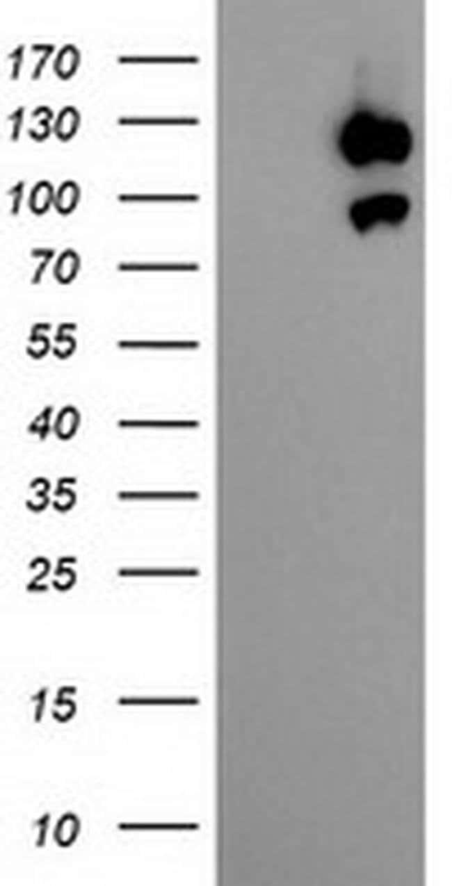 USP10 Mouse anti-Human, Non-human primate, Clone: OTI1H9, Invitrogen 100