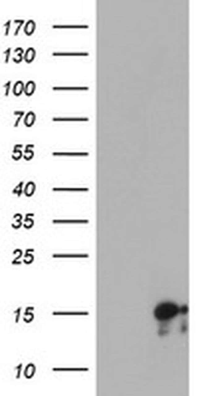 SYNJ2BP Mouse anti-Human, Clone: OTI3A9, Invitrogen 100 µL; Unconjugated