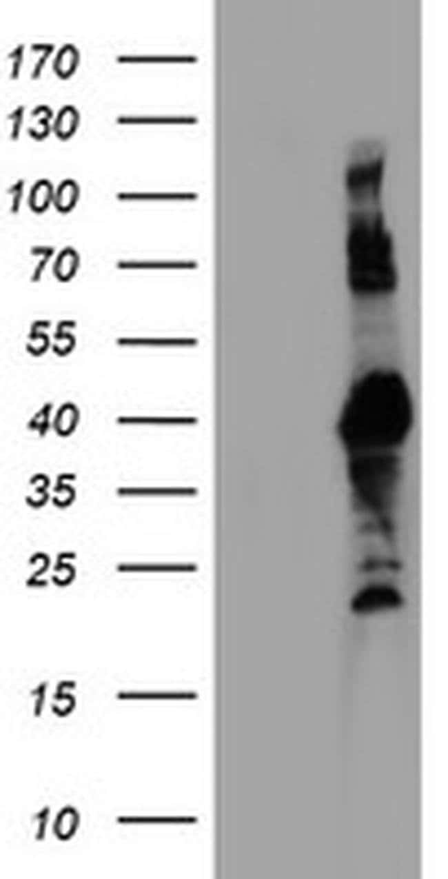 RNF113B Mouse anti-Canine, Human, Mouse, Non-human primate, Rat, Clone: