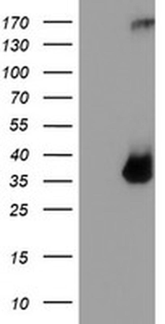 TPSG1 Mouse anti-Human, Clone: OTI1G1, Invitrogen 100 µL; Unconjugated