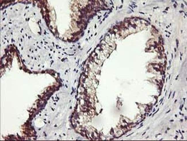 ALG2 Mouse anti-Human, Clone: OTI3C2, Invitrogen 100 µL; Unconjugated