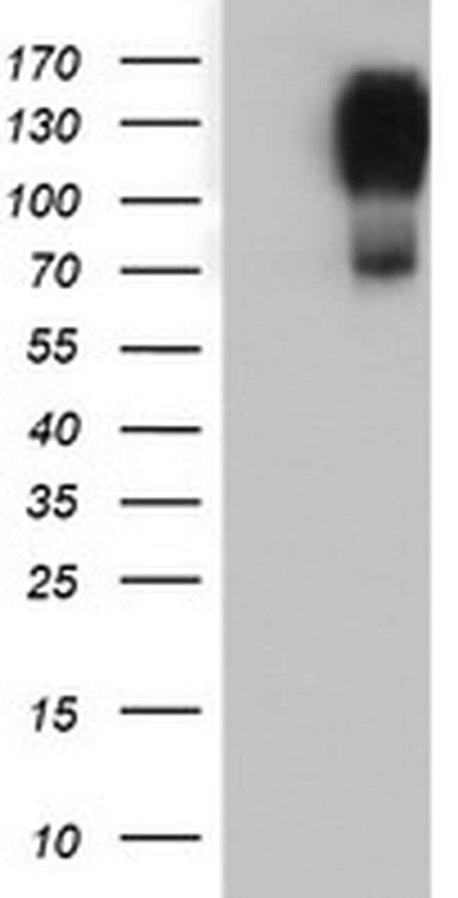 CD249 Mouse anti-Human, Rat, Clone: OTI4G8, Invitrogen 100 µL; Unconjugated