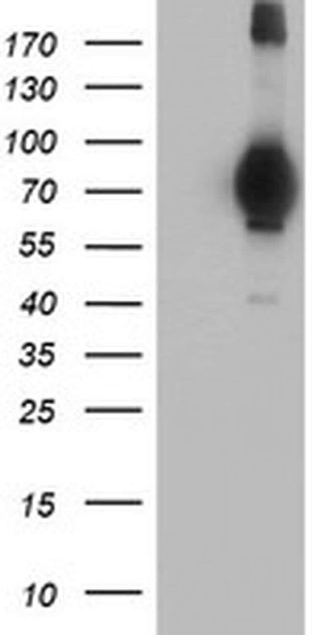 MIER2 Mouse anti-Human, Clone: OTI3G7, Invitrogen 100 µL; Unconjugated