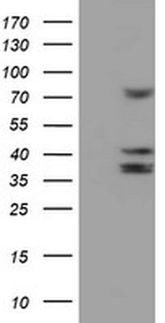 CYP2B6 Mouse anti-Canine, Human, Mouse, Non-human primate, Rat, Clone:
