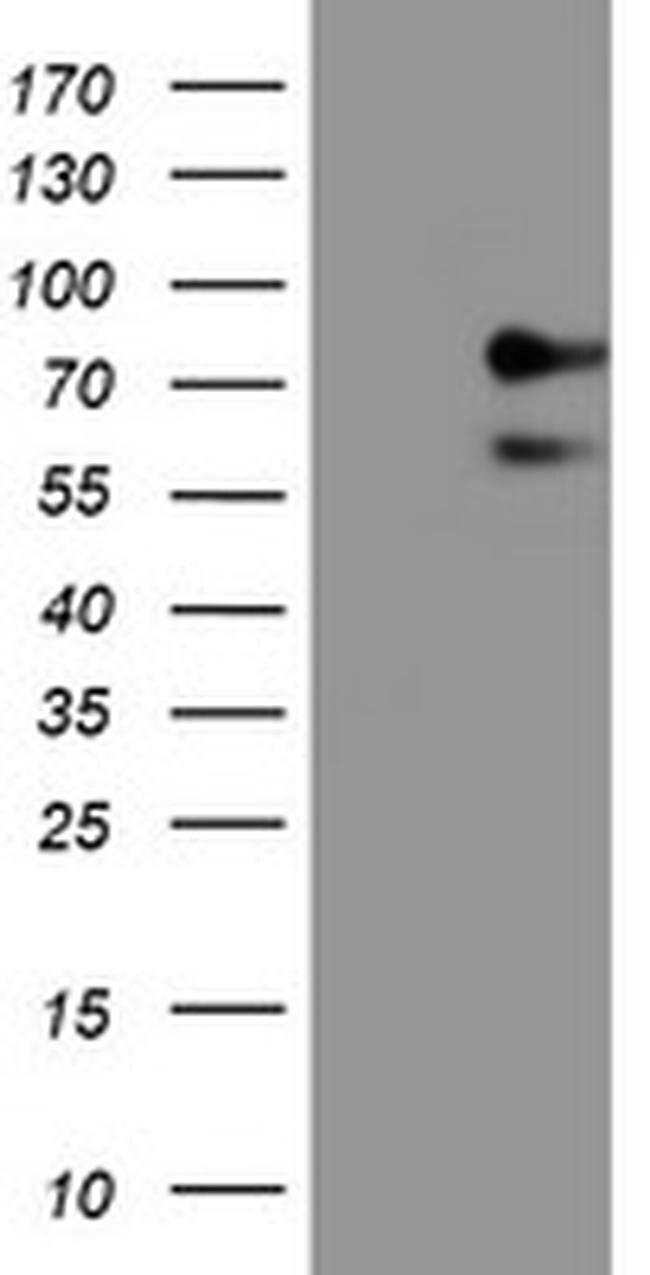 ALOX15 Mouse anti-Human, Clone: OTI7H6, Invitrogen 100 µL; Unconjugated