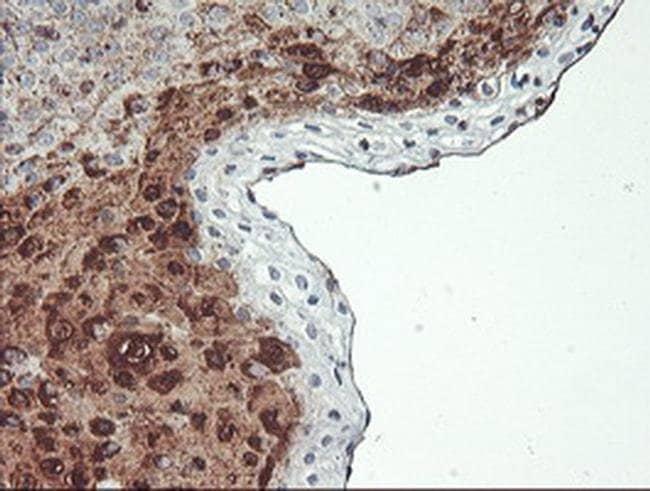 SCHIP1 Mouse anti-Human, Clone: OTI1C8, Invitrogen 100 µL; Unconjugated