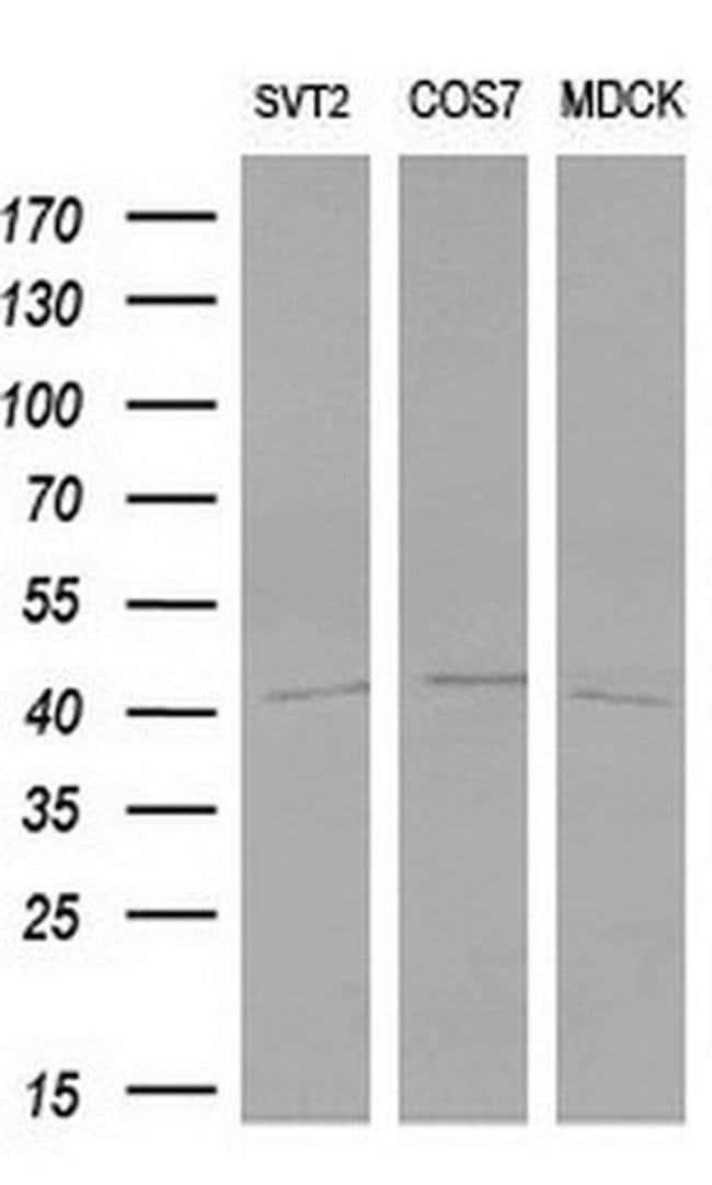 LIM1 Mouse anti-Human, Clone: OTI2D3, Invitrogen 100 µL; Unconjugated