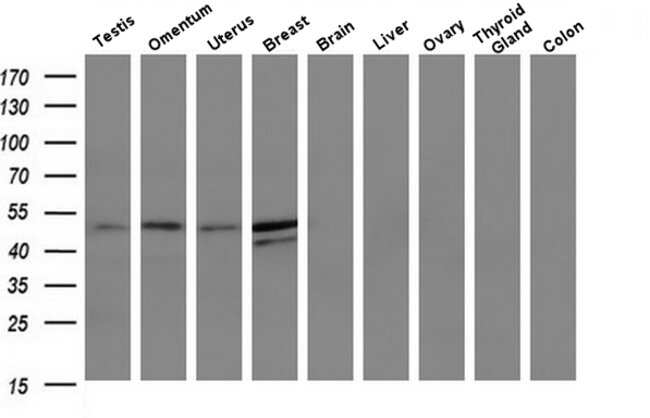 TMEFF2 Mouse anti-Human, Clone: OTI1E1, Invitrogen 100 µL; Unconjugated
