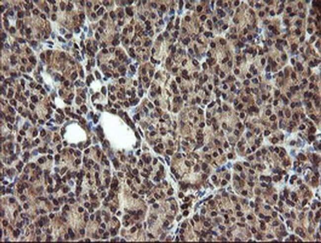 TBCC Mouse anti-Human, Clone: OTI2D1, Invitrogen 100 µL; Unconjugated