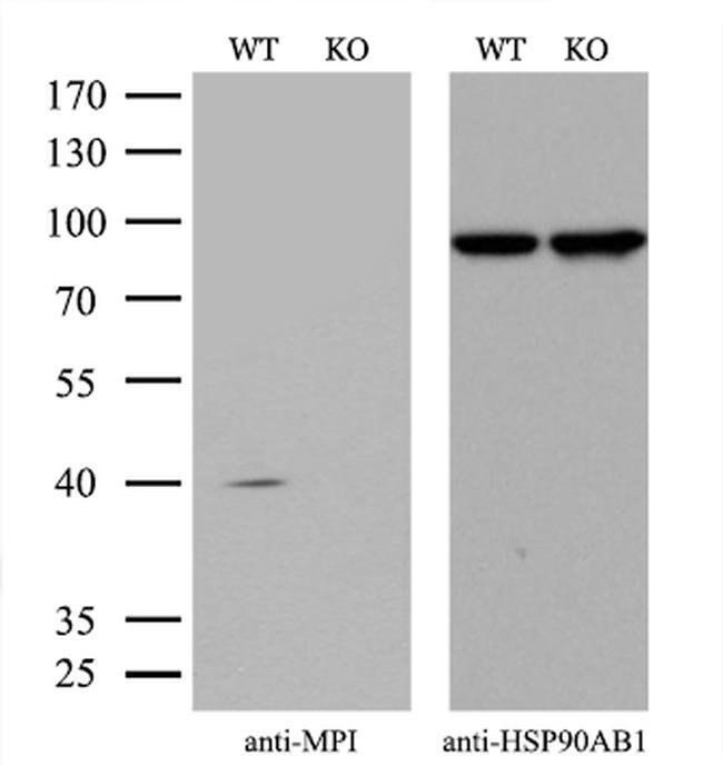 MPI Mouse anti-Human, Clone: OTI4E7, Invitrogen 100 µL; Unconjugated