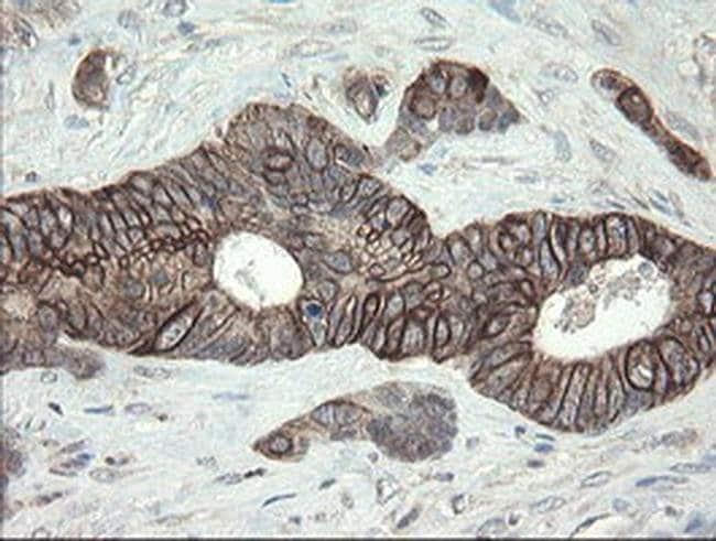DPH2 Mouse anti-Human, Clone: OTI2B12, Invitrogen 100 µL; Unconjugated