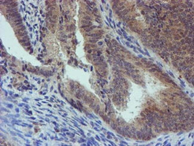PGM3 Mouse anti-Human, Mouse, Non-human primate, Clone: OTI1A11, Invitrogen