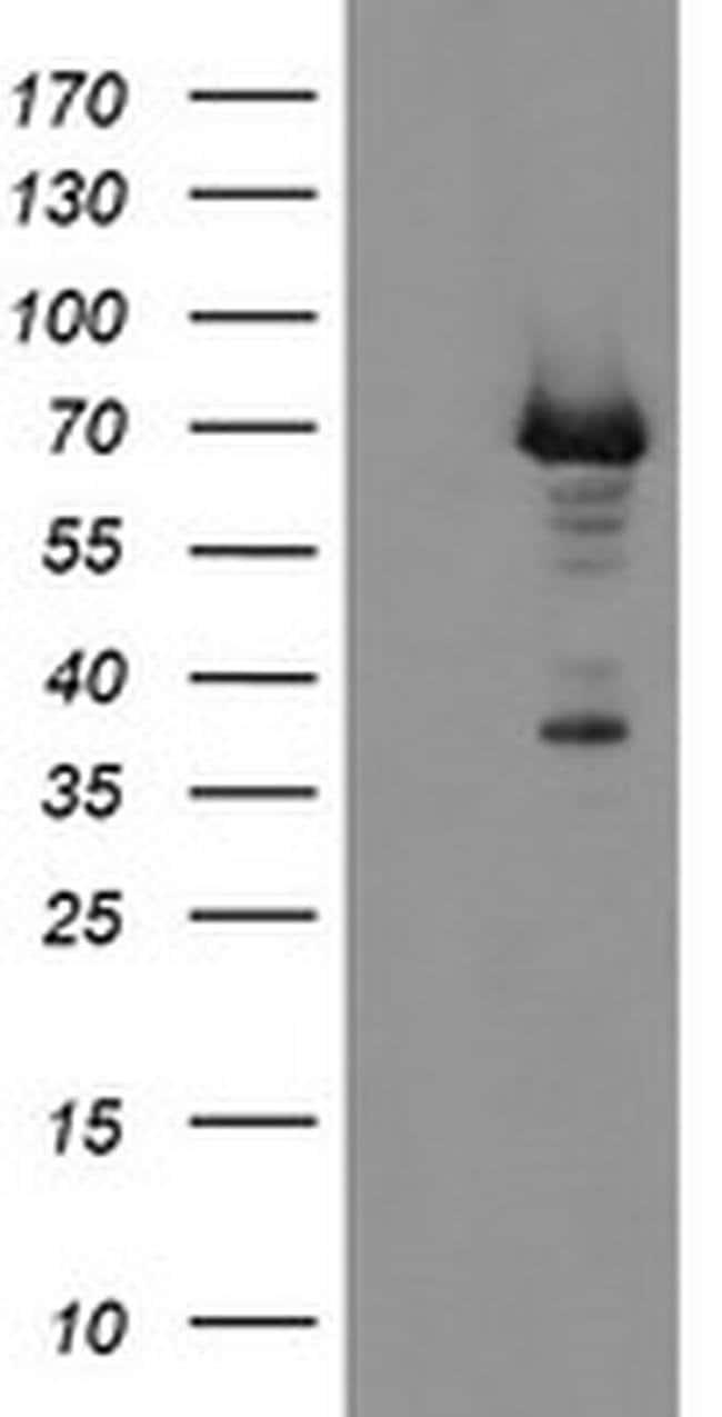 PGM3 Mouse anti-Human, Clone: OTI1B8, Invitrogen 100 µL; Unconjugated