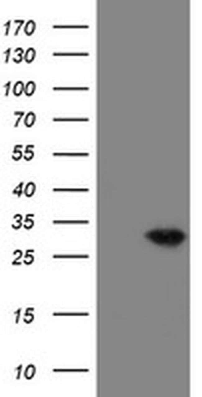 VBP1 Mouse anti-Canine, Human, Mouse, Non-human primate, Rat, Clone: OTI1A5,