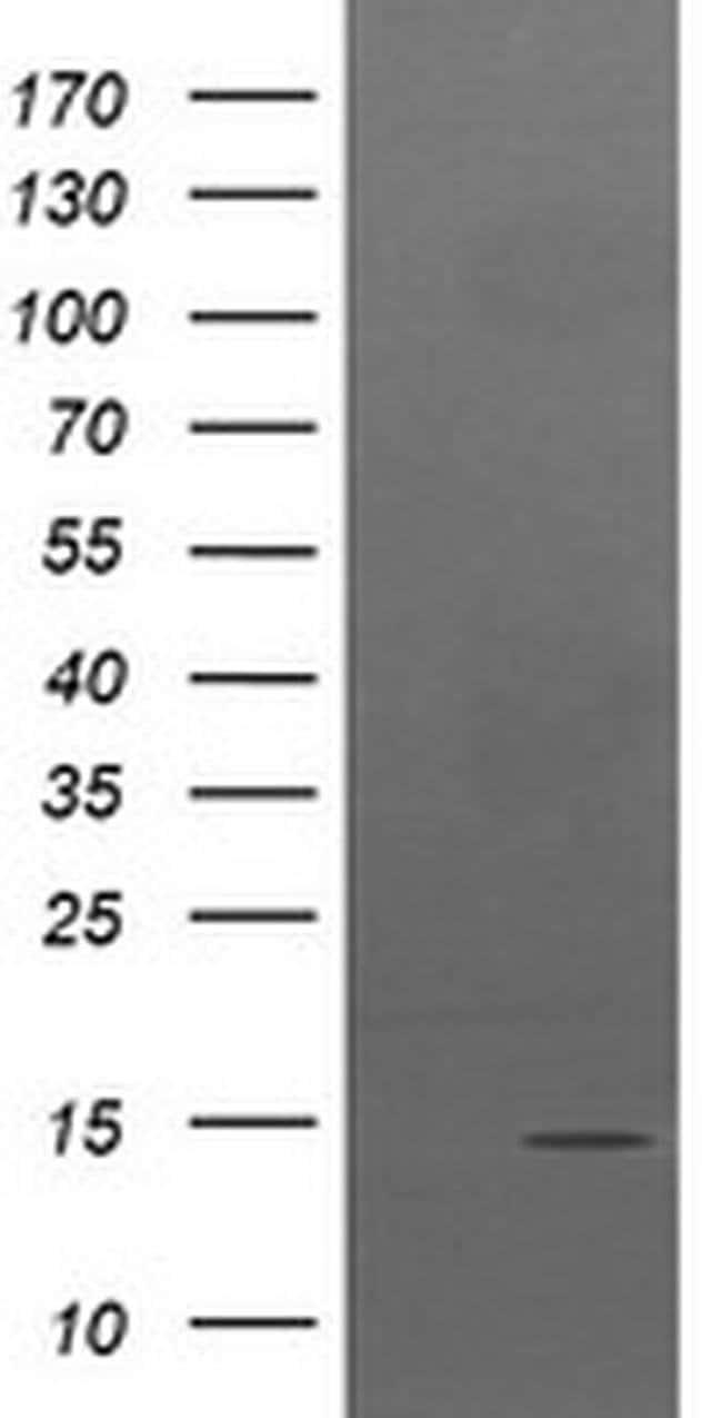 TPD52L3 Mouse anti-Human, Clone: OTI3D11, Invitrogen 100 µL; Unconjugated