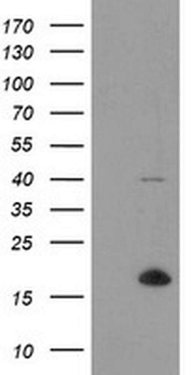 TPD52L3 Mouse anti-Human, Clone: OTI8C12, Invitrogen 100 µL; Unconjugated