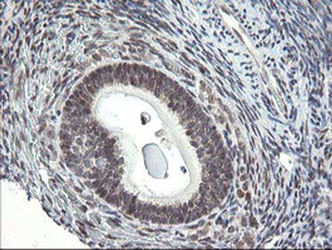 GORAB Mouse anti-Human, Clone: OTI4F11, Invitrogen 100 µL; Unconjugated