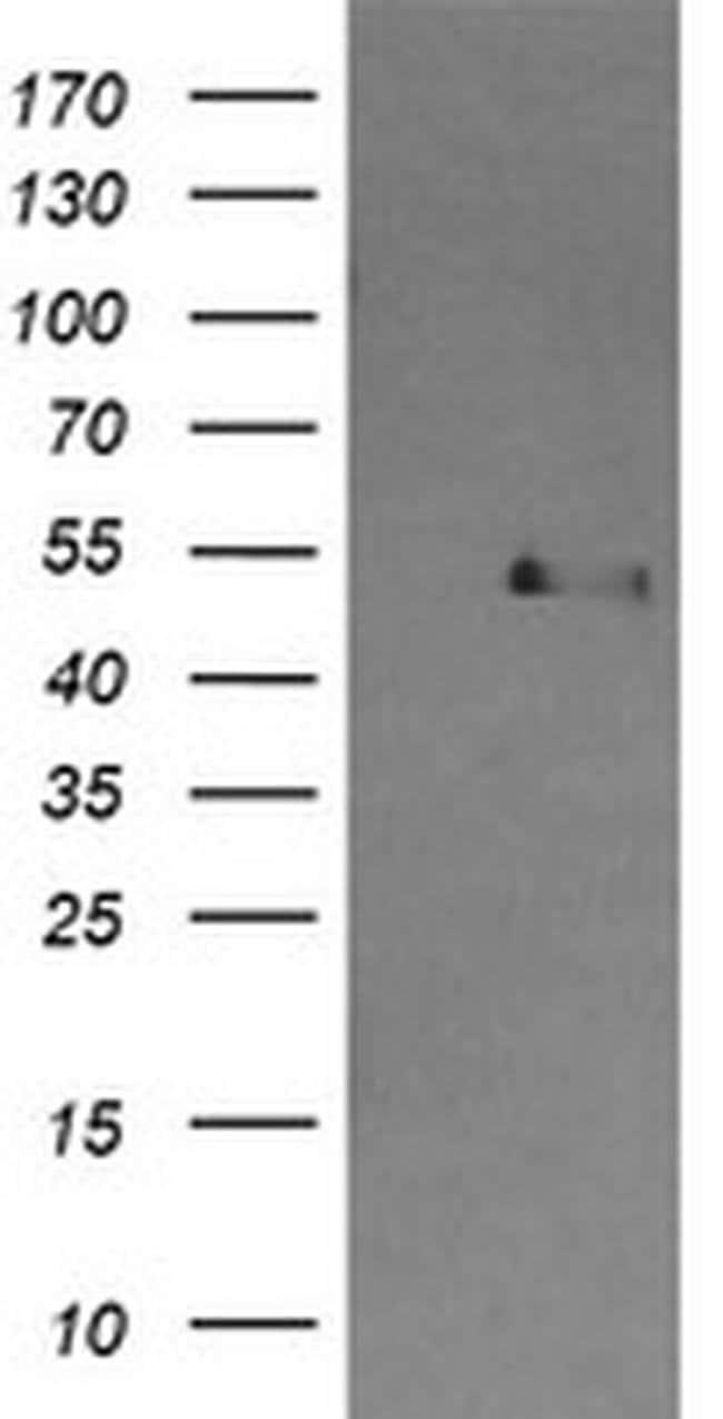 CBLC Mouse anti-Human, Clone: OTI4E3, Invitrogen 100 µL; Unconjugated