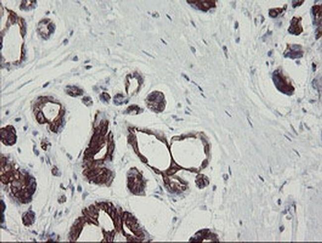 SLA2 Mouse anti-Human, Clone: OTI3A7, Invitrogen 100 µL; Unconjugated