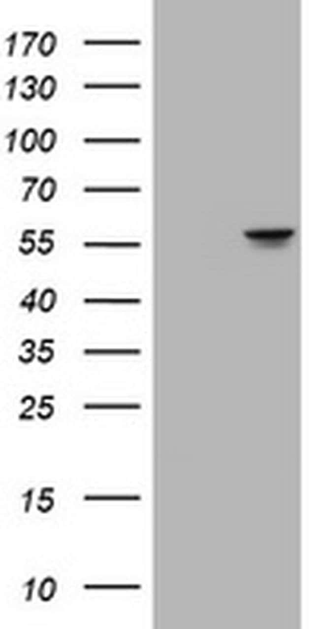ATP6V1B2 Mouse anti-Human, Clone: OTI1E11, Invitrogen 100 µL; Unconjugated