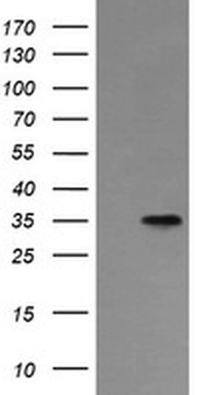 ASGR2 Mouse anti-Human, Clone: OTI4B6, Invitrogen 100 µL; Unconjugated