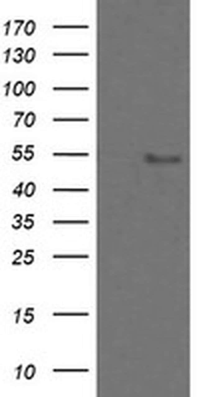 ZNF447 Mouse anti-Human, Clone: OTI2H7, Invitrogen 100 µL; Unconjugated
